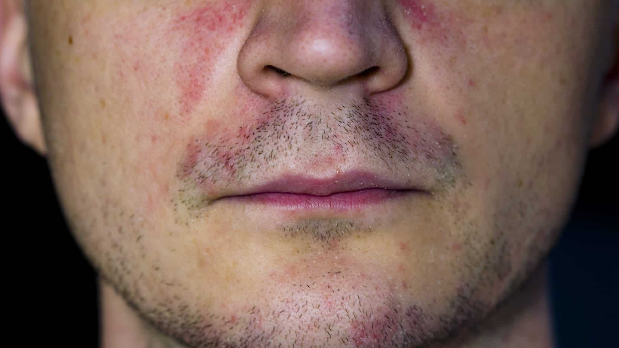 Man with rosacea skin condition