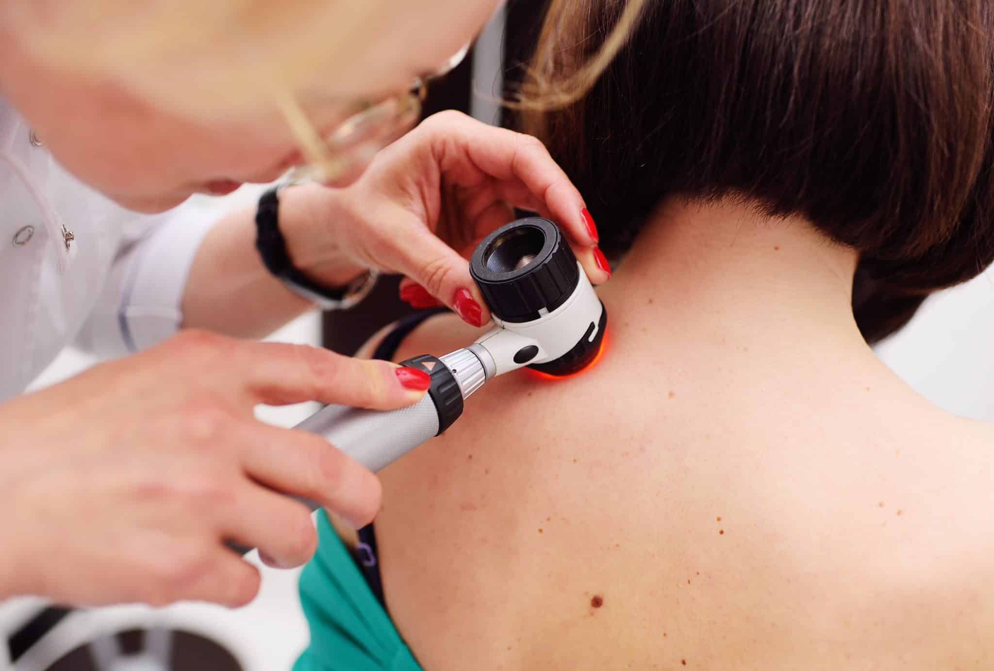 Doctor inspecting patient's skin for melanoma diagnosis
