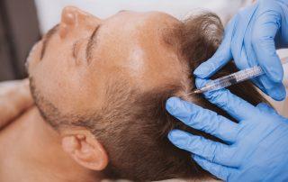 Man Receiving Hair Loss Treatment