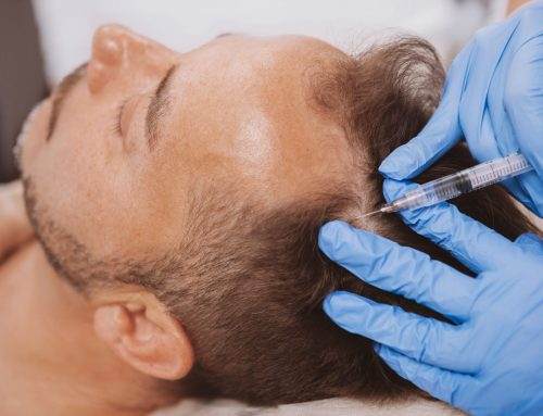 Alopecia: Fast Facts & Treatments