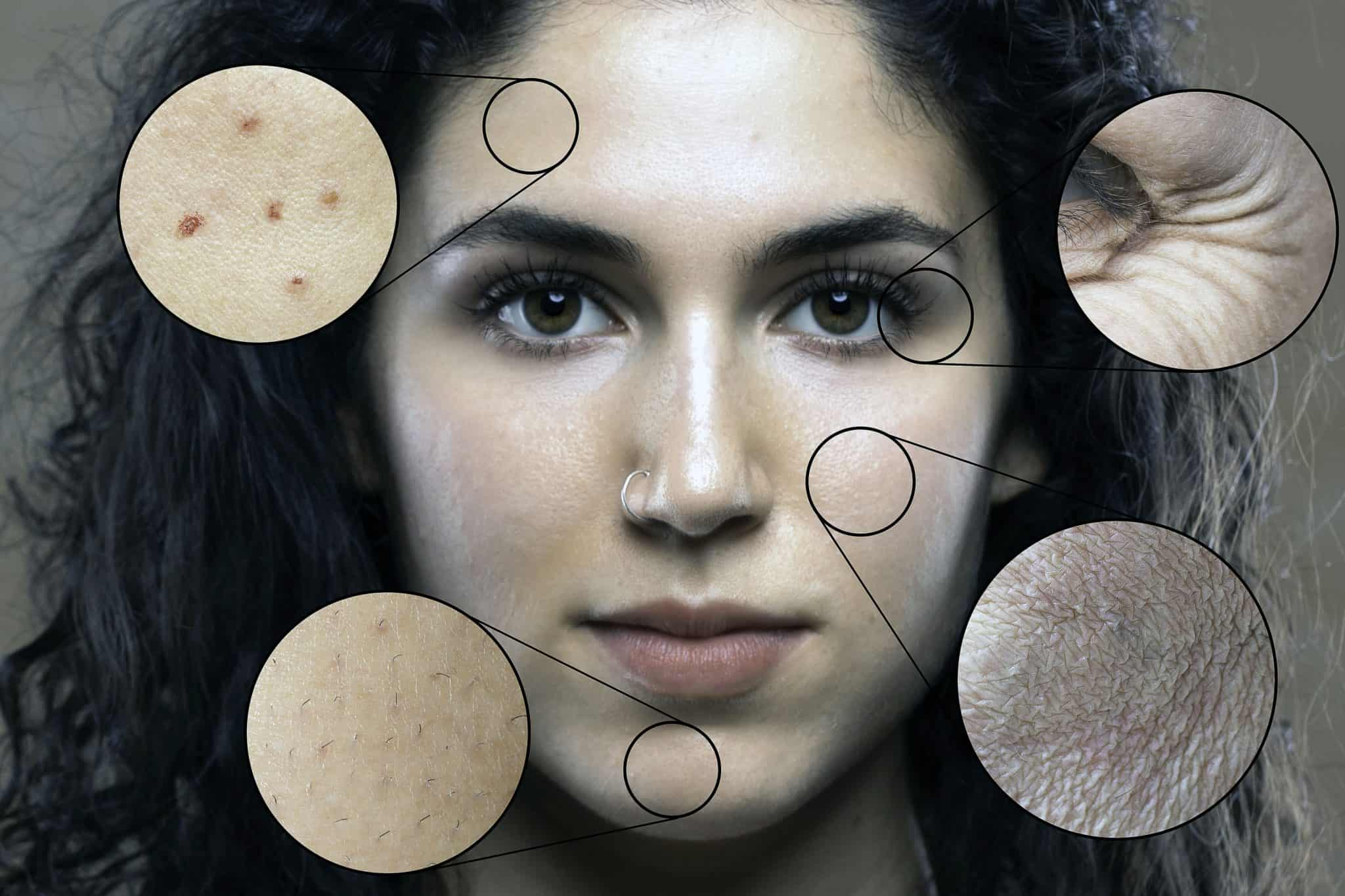 Close up portrait of woman revealing skin treatments options
