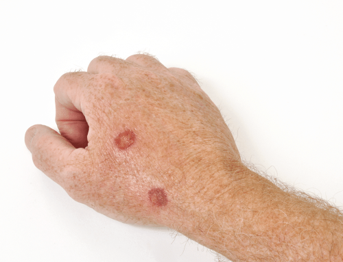 Understanding Actinic Keratosis: A Pre-Cancerous Condition