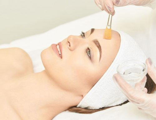 Chemical Peels as a Treatment Option