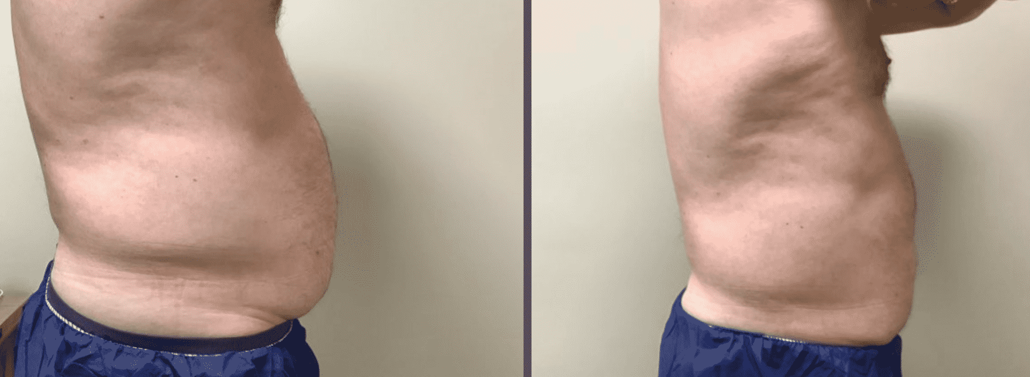 Male Patient Before & After Cooltone Side View