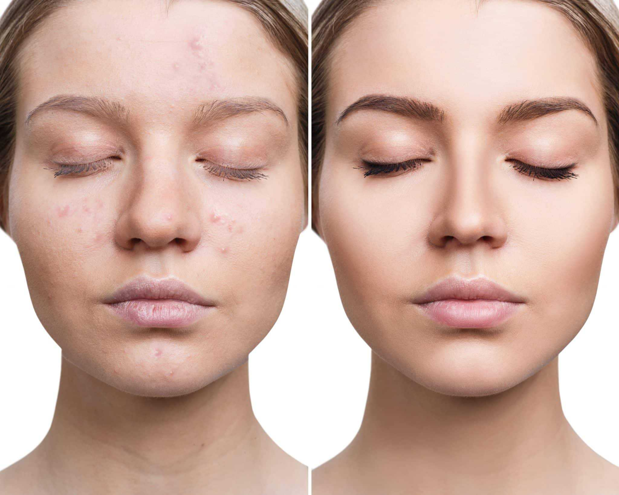 Acne Causes Types Treatment and Symptoms SCCSNJ