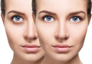 Everything You Need to Know About Eye Fillers