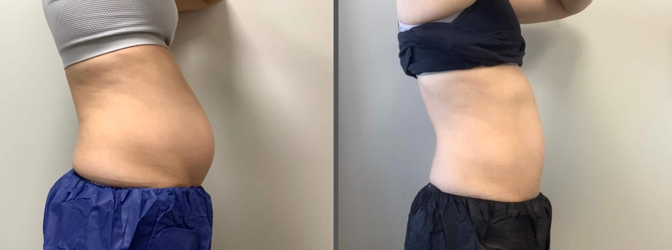 Female Patient Before & After Cooltone Side View