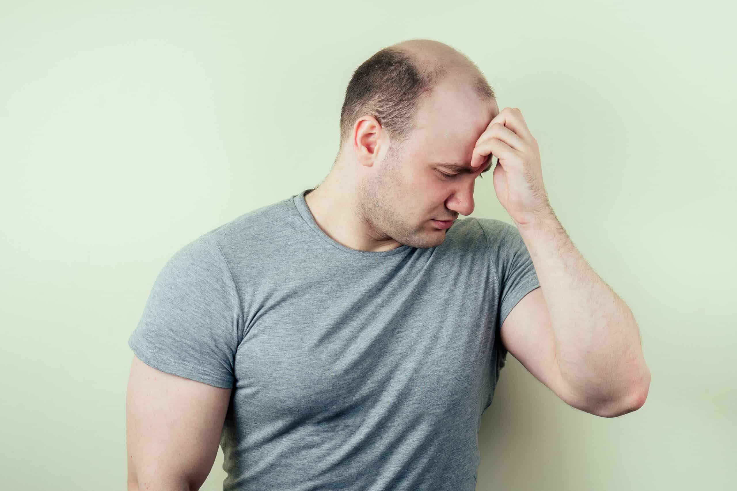 A man upset over his male pattern baldness